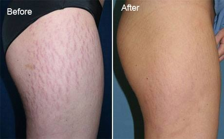 Emu Oil for Stretch Mark | Emuse ~ Pure Emu Oil Singapore ...