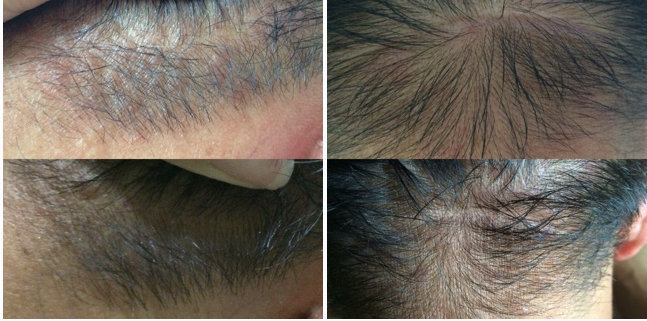 Before And After Pictures Emuse Pure Emu Oil Singapore